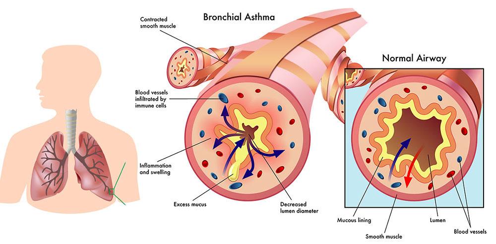 Allergy & Asthma Care I South Florida I All County Health Care